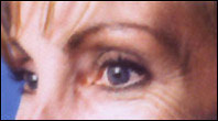Woman with crows feet before Botox